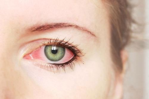 Viêm loét giác mạc bị nhiễm nấm có thể bị mù