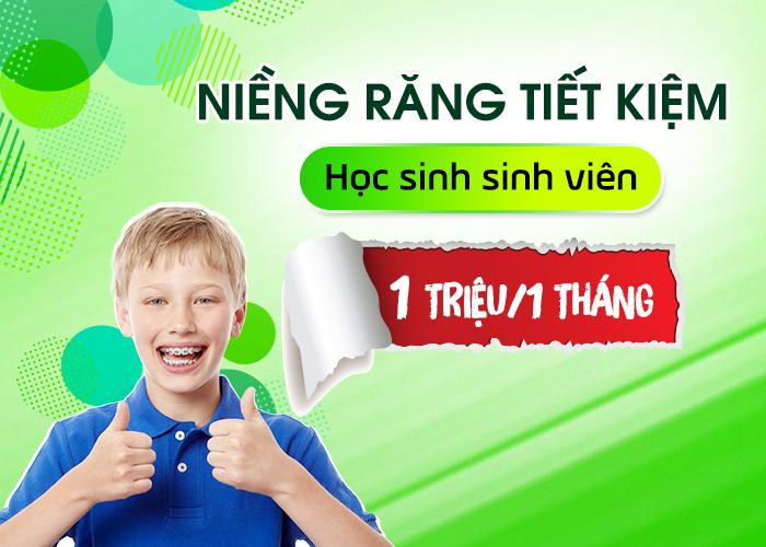 nieng-rang-tra-gop-1